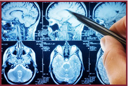 Cognitive_Brain_Health